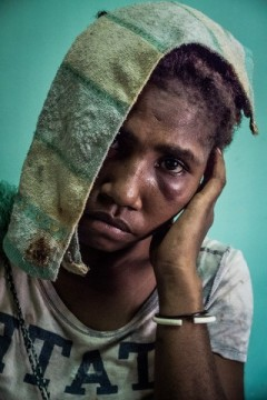 Banil Yalomba (16) came to the Antenatal Clinic of Port Moresby after having been sexually assaulted by her ex-boyfriend. A day after they separated, her former partner came to her parents' house and dragged Banil to a bush area, threatening her with a knife. There he beat her and raped her. Banil's father managed to find his daughter laying unconscious on the ground and brought her to the hospital.