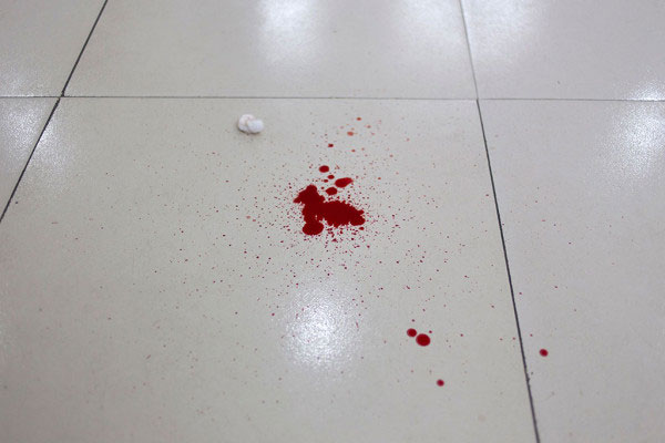 Blood Spill on the floor of casualty department of Dhaka Medical College, Bangladesh